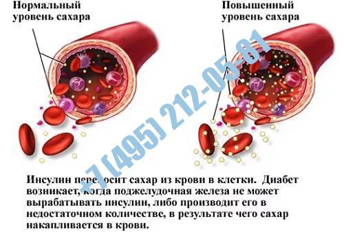 Справка анализ крови на сахар